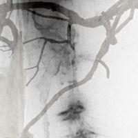 Neurogenesis: Kate and Helen Storey Image